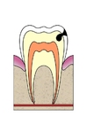 Image dental cavity 3
