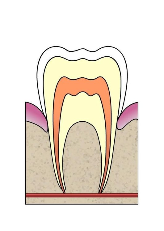 Image dental cavity 1