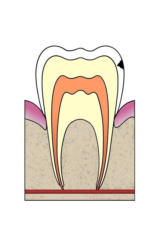 dental cavity 2