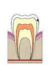 Image dental cavity 2