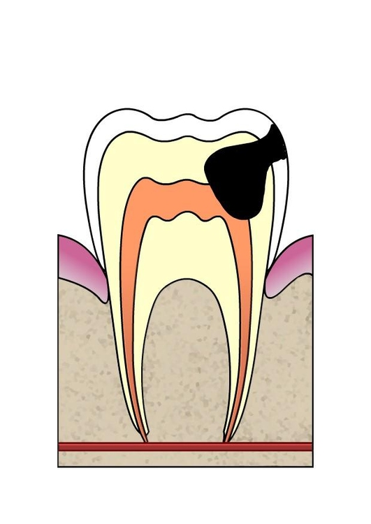 Image dental cavity 4