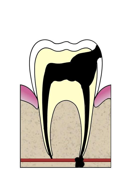 dental cavity 5