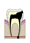 Image dental cavity 5