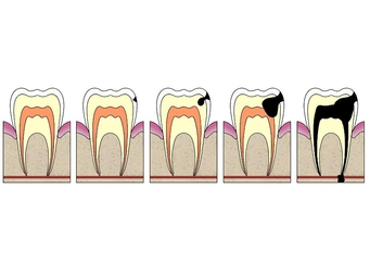 Image dental cavity