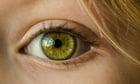 Photo eye